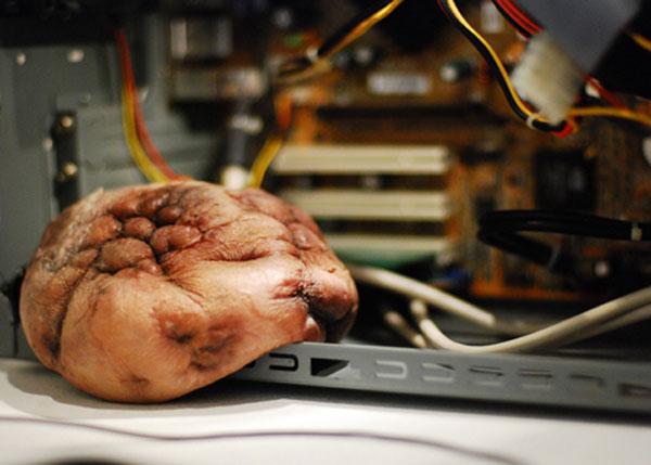 computer-tumor