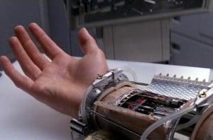 Austrian Bloke Gets Life Like Bionic Hand