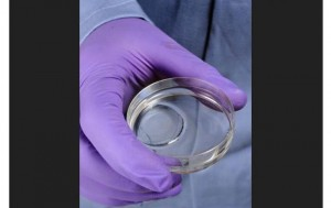 Experimental Hydrogel More Than Heals Scars