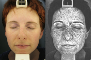 UV Photography Reveals True Extent of Sun Damage