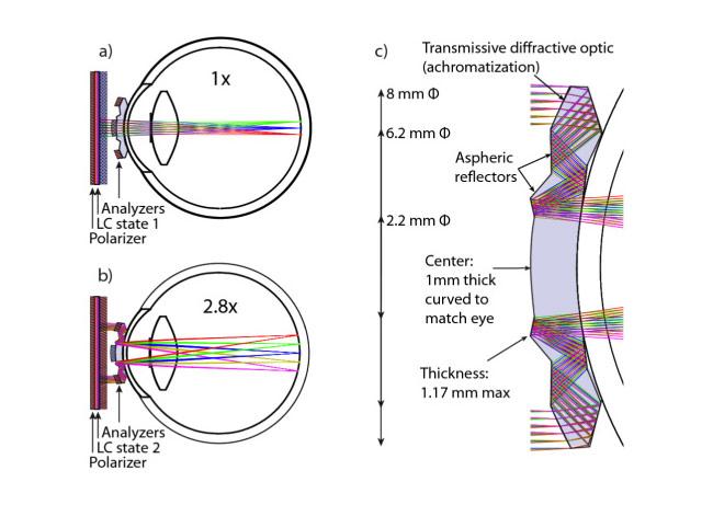 Telescopic Contact Lense