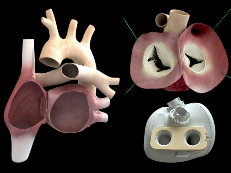 carmat heart