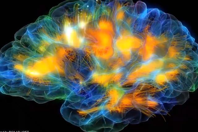 Brain Scan Oculus Rift
