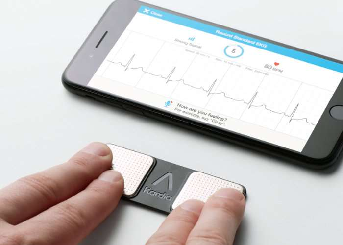 AliveCor Kardia Mobile EKG Now Available For $99 (video)