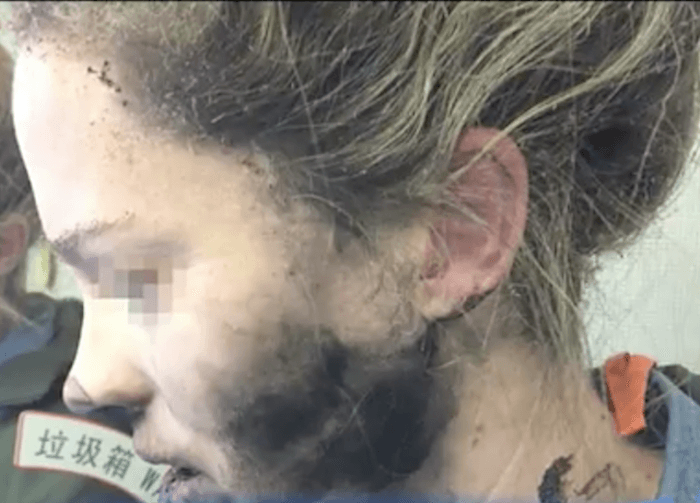 Woman's Headphones Explode While Sleeping On Plane