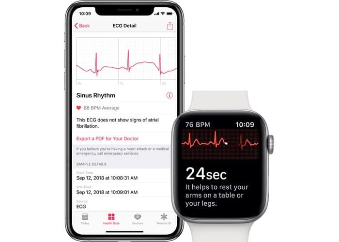 ECG Functionality Comes to Apple Watch