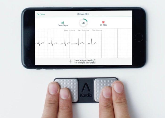 smartphone ECG monitor